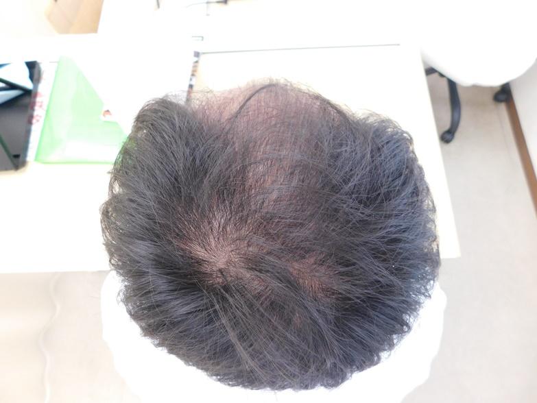栃木県宇都宮市のAGA・薄毛治療事例(治療前)