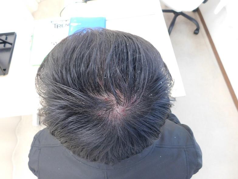 栃木県宇都宮市のAGA・薄毛治療事例(治療中)