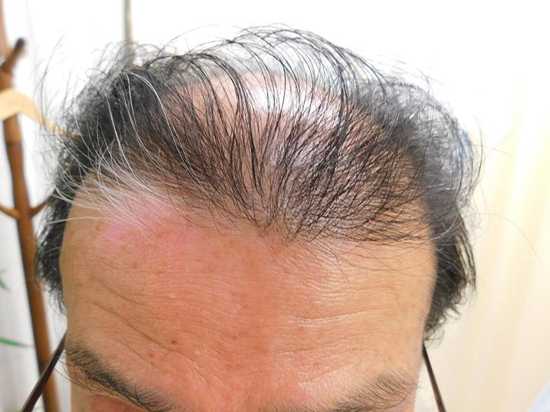 栃木県宇都宮市のAGA・薄毛治療事例・60代男性(治療前)
