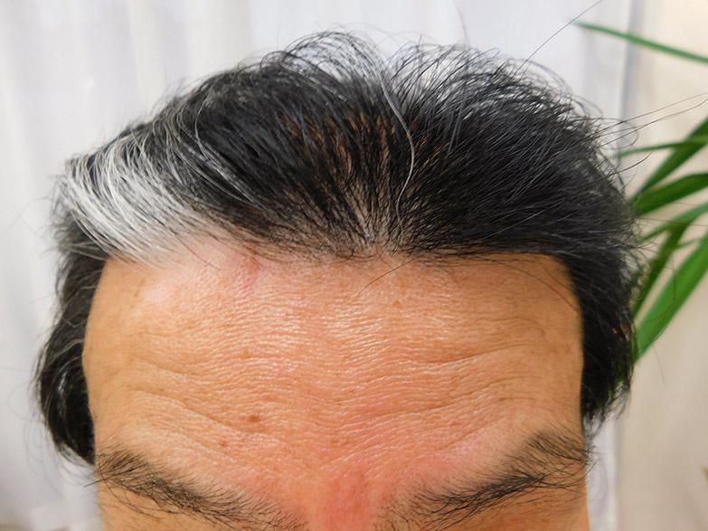 栃木県宇都宮市のAGA・薄毛治療事例・60代男性(治療後)