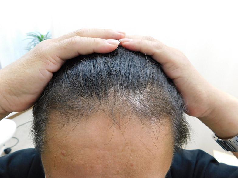 栃木県宇都宮市のAGA・薄毛治療事例・50代の男性(治療後)
