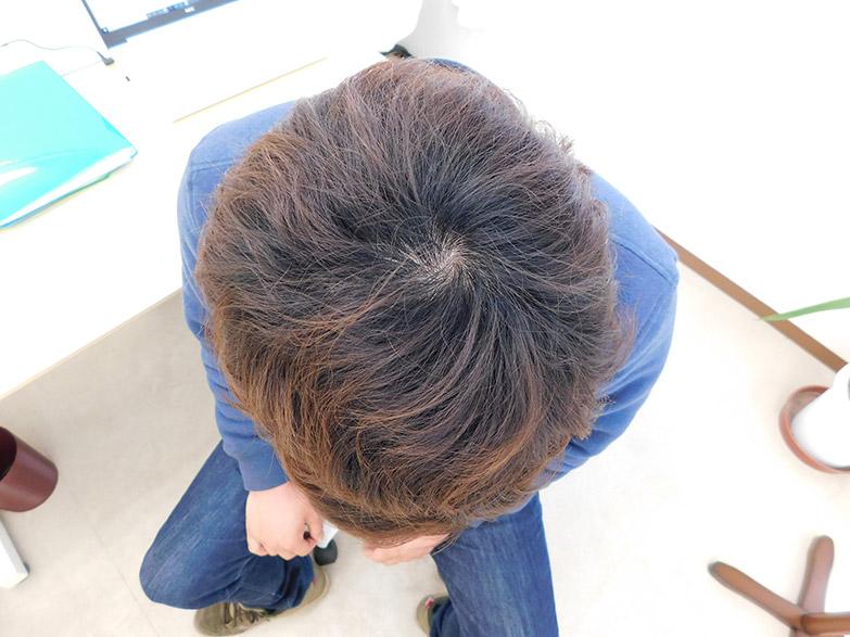 栃木県宇都宮市のAGA・薄毛治療事例・20代男性(治療後)