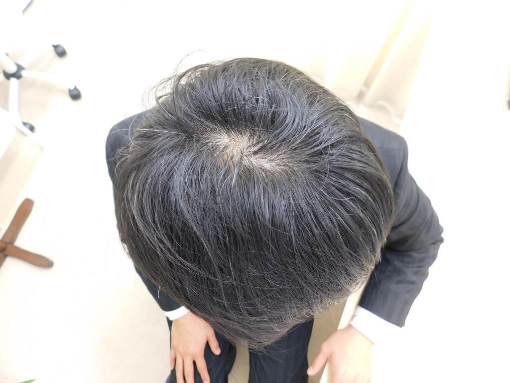 栃木県宇都宮市のAGA・薄毛治療事例・40代の男性(治療後)