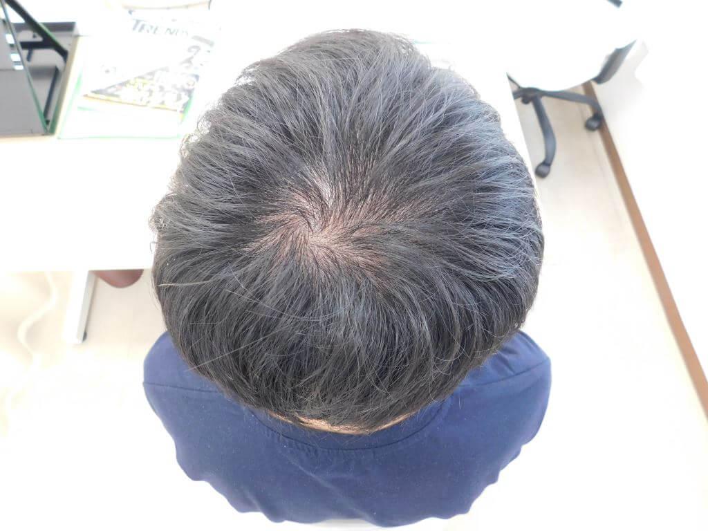 栃木県宇都宮市のAGA・薄毛治療事例・20代の男性(治療前)