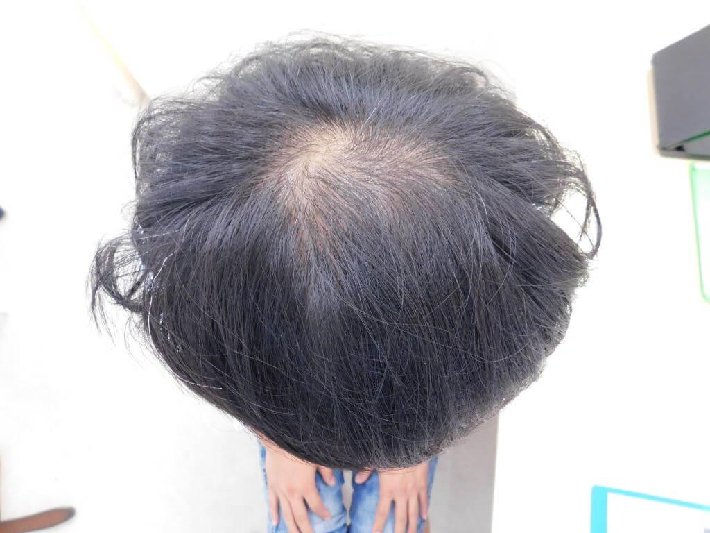 栃木県宇都宮市のAGA・薄毛治療事例・40代の男性(治療前)