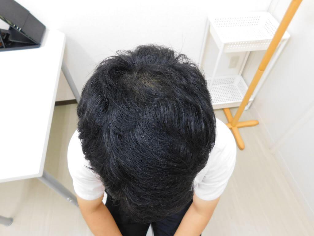 栃木県宇都宮市のAGA・薄毛治療事例(治療後)